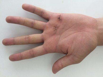 cirugia dedo en gatillo