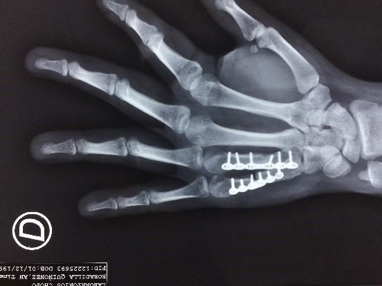 mano fracturada