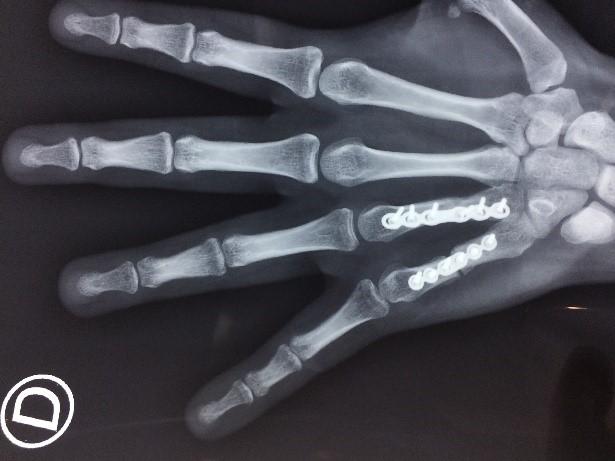 fracturas de la mano