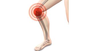 Viscosuplementación de rodilla